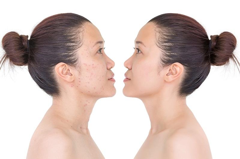 Kem dưỡng nâng tone da là gì và có tốt không?