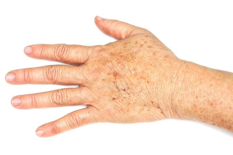 Tổng hợp 6 cách trị đồi mồi trên da được nhiều người áp dụng